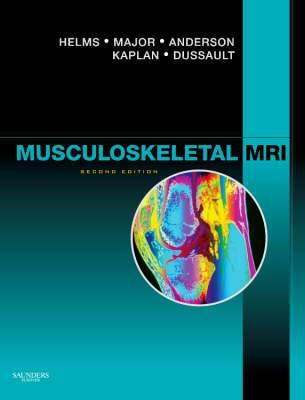 Cover of Musculoskeletal MRI