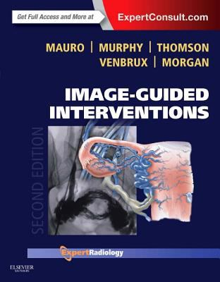 Cover of Image Guided Interventions