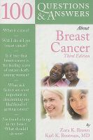 100 Questions &amp; Answers about Breast Cancer