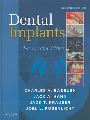 Dental implants : the art and science
